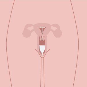 محل قرار گیری فنجان قاعدگی و آیودی در واژن